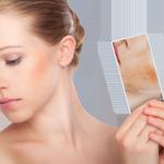 behandeling couperose dermatoloog dr mestdagh