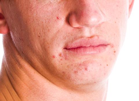 wat doet een dermatoloog bij acne