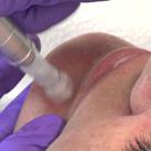behandeling peeling dr mestdagh