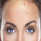 behandeling huidveroudering dermatoloog dr mestdagh