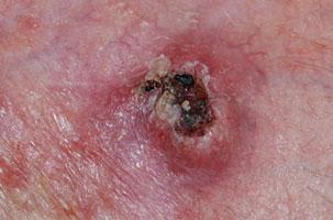 Basaalcelcarcinoom niet behandelen