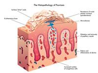 oorzaak psoriasis